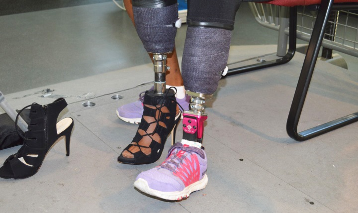 Army Spc. Cherdale Allen shows off two of her prosthetic legs: one for walking and the other for high heels.